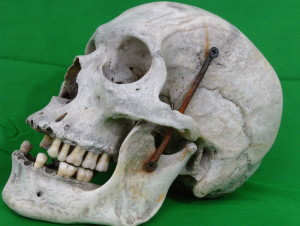 Photo of a real human skull from Osteology Warehouse at www.osteologywarehouse.com